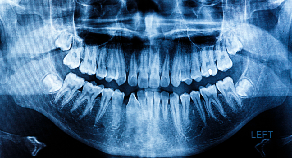 Digital X-rays are one of the Tools used for Oral Cancer Screening in Bremerton WA
