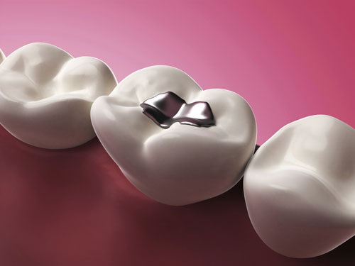 Regular check ups at Pacific Ave. Dental can prevent cavities.